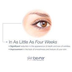 SkinBetter Science AlphaRet Overnight Cream takes the power of a #retinoid a step further by combining it with alpha hydroxy acid to create a double conjugated retinoid.  In as little as 4 weeks, you should begin to notice a significant reduction in the appearance of the depth and size of wrinkles, as well as an improvement in the look of skin smoothness and texture. Skin Care Cream, Skin Cream, Facial Rejuvenation, Alpha Hydroxy Acid, Moisturiser, Your Skin, Lotion, How To Find Out, Beauty Hacks