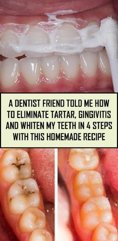 A Dentist Friend Told Me How To Eliminate Tartar, Gingivitis And Whiten My Teeth… - Health Remedies Teeth Health, Dental Health, Oral Health, Health Tips, Health And Wellness, Health Fitness, Health Benefits, Health Heal, Healthy Teeth