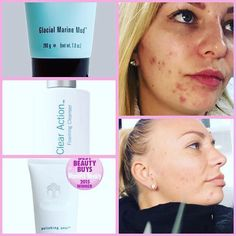 This lovely lady has been using 3 of our products over a month period to help clear her skin up . These are her results These products are ideal for Teenagers , Adults Men & Woman PM to order or for more info Nu Skin, Glacial Marine Mud, Face Care, Skin Care, Beauty Skin, Hair Beauty, Daily Makeup Routine, Cleanser, Beauty Women