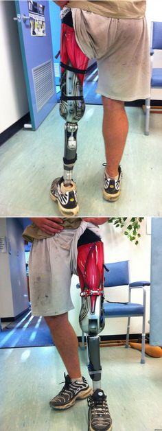 Reddit user captaincripple lost his leg in a motorcycle accident and has since had a custom-painted prosthetic made. This is it. It looks half-human, half-robotic, 100% something that would freak me out if I saw it fall off.