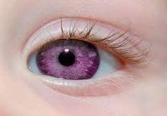olhos vermelhos naturais albino - Pesquisa Google