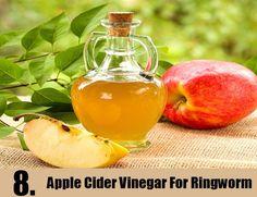 Apple Cider Vinegar For Ringworm