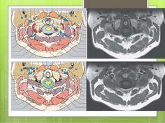 ARTERIAL The major arteries related to CVJ are :-  Vertebral arteries (m/c)  Postero-inferior cerebellar arteries (PICA)...