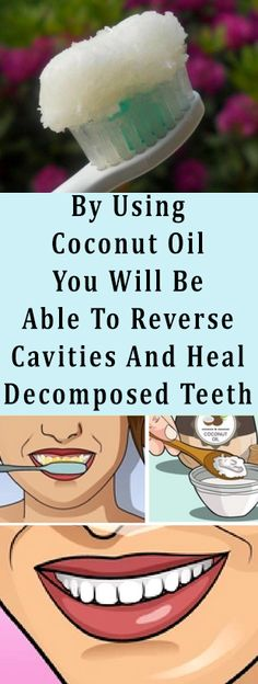 By Using Coconut Oil You Will Be Able To Reverse Cavities And Heal Decomposed Teeth #health #fitness #teeth #diy