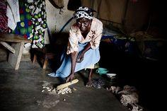 Anna Banabas è cieca a causa della cecità dei fiumi, una terribile malattia che, se non curata in tempo, porta alla cecità totale.   http://www.sightsavers.it/il_nostro_lavoro/le_persone_che_avete_aiutato/19509.html