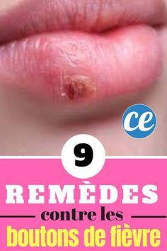 9 Grandmother's Remedies To Treat A Fever Button Quickly & Naturally. Residency Medical, Medical Transcriptionist, Medical Anatomy, Medical Imaging, Medical Scrubs, Medical Field, Medical Conditions, Remedies, Health Fitness