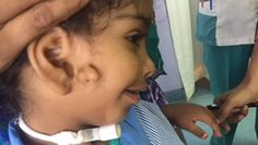City doctors successfully operated on a three-year-old girl with a rare condition of a missing jaw and an extra ear. Albaraa Rashid from Oman was brought