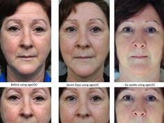 6 week Galvanic treatment on forehead, nasolabial folds and eyelids  www.stevematilda.nsedreams.com  ID: US0479534