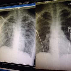 My lungs before and after my double lung transplant (left is severely damaged cystic fibrosis lungs).......Faith Beavers' lungs