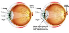 Netradhama Hospitals has best glaucoma doctors, cataract & refractive surgeons in Bangalore who are well expertise in providing retinal treatment, cataract, refractive surgery & lasik treatment in India. Young Living Oils, Young Living Essential Oils, Lasik Eye Surgery, Eyelid Surgery, Eye Treatment, Healing Oils, Health Tips