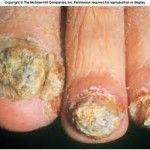 Grave mycose des ongles de pied