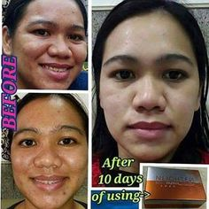 These Skin Care Tips Will Make Your Skin Happy - Lifestyle Monster Pimples On Chin, Kojic Acid, How To Get Rid Of Pimples, Skin Detox, Skin Care Remedies, Prevent Wrinkles, How To Treat Acne