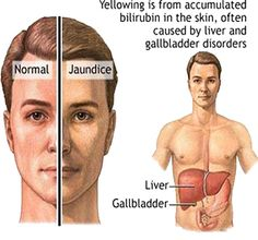 Jaundice is a symptom of several diseases, which primarily affect the liver. In jaundice the sclera (white portion of the eyes) and the skin of a person becomes Health Articles, Health Tips, Health And Wellness, Health Care, Simply Health, Gilbert's Syndrome, Fatty Liver Symptoms, Disease Symptoms, Body Fitness
