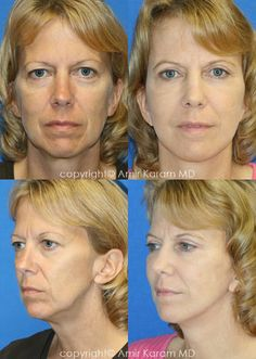 Consider a fat transfer procedure in San Diego - La Jolla California with Dr Karam. Information on fat transfer procedures, full face fat transfer, and micro fat transfers to help restore volume to the face. La Jolla California, Fat Transfer, Plastic Surgery, Personal Style, Building, Face, Beauty, Buildings