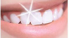 Video shows 3 best ways to remove teeth plaque or tartar at home without visiting a dentist for your dental cleaning. Remedies For Strong and White Teeth: ht. Implants Dentaires, Dental Implants, Implant Dentistry, Teeth Whitening Remedies, Natural Teeth Whitening, Toothpaste Recipe, My Dentist, Oil Pulling, White Teeth