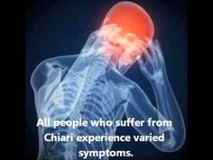 wow im glad someone shared this so i could watch as well.. god bless this wonderful family..Chiari Malformation Awareness