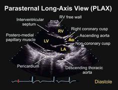 Parasternal long axis view TEE