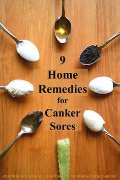 9 Home Remedies for Canker Sores & Tips to Avoid Canker Sore Triggers: – Coconut Oil – Baking Soda – Salt Water – Tea – Honey – Aloe Vera Juice – L-lysine – Apple Cider Vinegar (ACV) – Yogurt Canker Sore Home Remedies, Cold Home Remedies, Natural Health Remedies, Natural Cures, Herbal Remedies, Canker Sore Cure, Holistic Remedies, Natural Medicine, Home Remedies