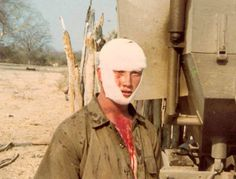 Injured in landmine Defence Force, Anglo Saxon, African History, Cold War, Military History, Troops, Art Reference, South Africa, Army