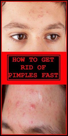 Pimples are the most annoying for a lot of reasons, they are painful and it's even worse. But If you are having a blind pimple they can be more painful than other pimples. Because the blind pimple is acne that has developed under the surface of the skin. Warts On Hands, Warts On Face, Get Rid Of Warts, How To Get Rid Of Pimples, Remove Warts, Brown Spots On Skin, Skin Spots, Dark Spots, Brown Skin