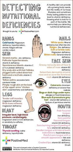 Detecting Nutritional Deficiencies : Found this helpful infographic on Pinterest featuring signs or conditions we should be on the look out for around the eyes, nails, tongue, lips, hands, and skin that may indicate some sort of nutritional deficiency. I can only assume this chart was inspired by Ayurveda or Traditional Chinese Medicine, as these ancient […]