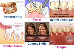 Why would someone need a root canal tooth extraction recovery,plaque behind bottom front teeth teeth pain causes,chronic periodontal disease treatment medicine for gum disease. Dental Hygiene School, Dental Humor, Oral Hygiene, Impacted Wisdom Teeth, Tooth Decay In Children, Dentist Near Me, Swollen Gum, Gum Health, Receding Gums