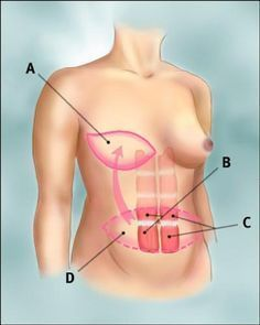 breast cancer reconstruction breast cancer reconstruction #breastcancerinformation