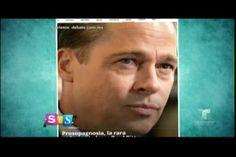 Aseguran Que Brad Pitt Sufre De Una Rara Enfermedad