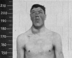"""World's Littlest Giant: The Curious Case of Adam Rainer.  Man who went from """"dwarf"""" to """"giant"""" due to a pituitary tumor that caused acromegaly."""