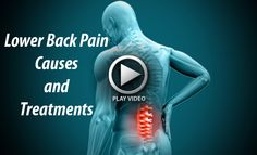 Lumbar-spine-man Medical Sites, Lower Back Pain Causes, Teaching Tips, Videos, Video Clip
