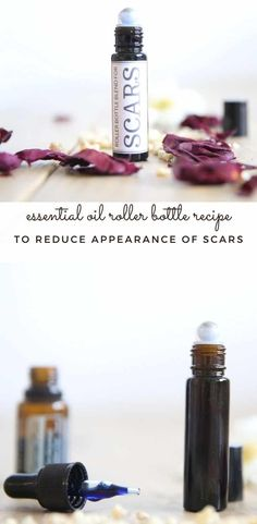 Learn which essential oils are best for reducing the appearance of scars and how to use them. The best roller bottle blend for scars with a printable label. #scarremedies #essentialoils #rollerbottle