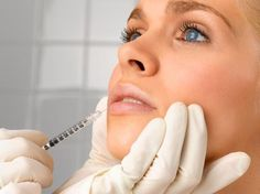 Juvederm injections can be used to create the perfect lip for your face. #skinwin #beauty