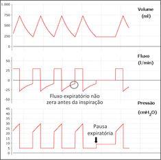 Manual de Ventilação Mecânica - Monitorização da Mecânica Respiratória durante a Ventilação Mecânica - xlung.net