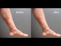 Mother Heals Varicose Veins With This Simple Recipe From Old Granny The Results Are Almost Immediate - YouTube