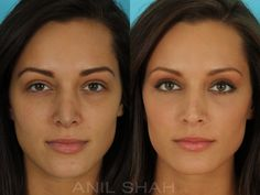 Patient 528, Rhinoplasty before and after pictures