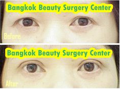 Thai Cosmetic Surgery Holidays are here to help you achieve your cosmetic surgery goals whether it be Nose Surgery, Liposuction, Face Lifts, Breast augmentation or other types of cosmetic surgery. http://www.thaicosmeticsurgeryholidays.com