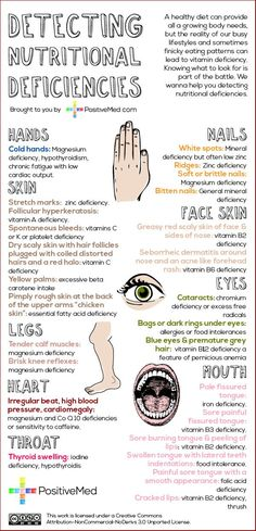Quick ways to detect nutritional deficiencies #infographic