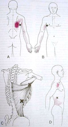Latissimus Dorsi Trigger Point Diagram---------lats action -extension,internal rotation of arm, adduction