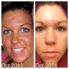 "PRODUCT: Reverse / TIME PERIOD: 1 YEAR / Fellow Consultant Brooke W. said, ""You don't realize HOW much your skin has changed until you make a before and after. i use the Unblemish regimen at night and the Reverse regimen in the morning. Occasionally, I will use the AMP roller, Macro Exfoliator, and microdermabrasion paste."""