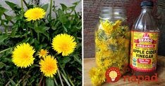 Don't remove the yellow weeds out of your garden anymore! They are useful for your healthYou may be accustomed to finding the yellow weeds in your garden. Instead of removing them, you are advised to use them for your health. Dandelion has. Dandelion Uses, Dandelion Root Tea, Dandelion Recipes, Dandelion Plant, Foot Remedies, Herbal Remedies, Dandelion Health Benefits, Eating Dandelions, Cabbage Wraps