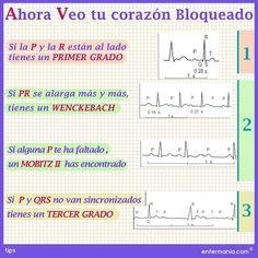 #bloqueoAV, #bloqueocardíaco, #bloqueoauriculoventicular, #EKG, #electrocardiograma, #enfermera #enfermero #enfermería