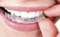 All you need to know about dental braces before you apply, that will be a perfect match for you. Here we are explaining everything about braces like what are braces, Types of braces and Factors to consider when choosing braces, Consult more about professional dentist care near you.