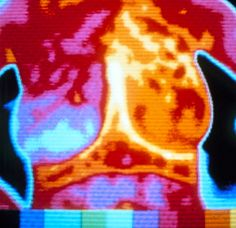 14 Best Thermography images in 2013 | Cancer, Health