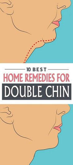 Top 10 Home Remedies For Double Chin