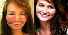 Como esta mulher se sentiu linda até mesmo depois que isso aconteceu com seu rosto