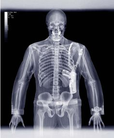 pictures of x-rays | Funny X-ray