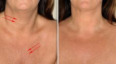 Wrinkles on the neck and chest are the first signs of the aging process. However, there are other factors that can accelerate the appearance of wrinkles such as sun exposure, frowning etc. Premature w