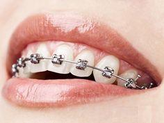 Dieta a aparat ortodontyczny - witaminy i mikroelementy W czasie noszenia aparatu ortodontycznego zalecamy wzbogacenie diety w pokarmy zawierające białko i wapń. Chronią one zęby przed próchnicą oraz wzmacniają kości szczęki i żuchwy, które są naruszane podczas przemieszczania się zębów pod wpływem działania aparatu ortodontycznego.