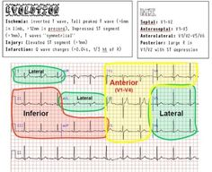 EKG/ECG Cheat Sheet | EKG