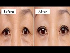 How I Fixed My Hooded Droopy Eyelids Instantly! Look 10 Years Younger Naturally - YouTube